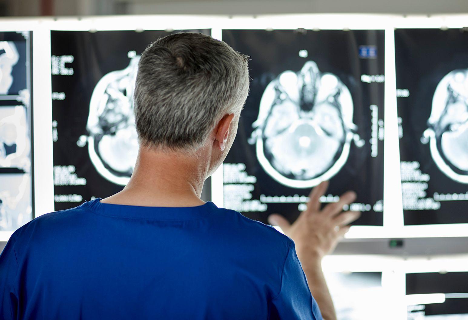 Radiologist examines a brain scan