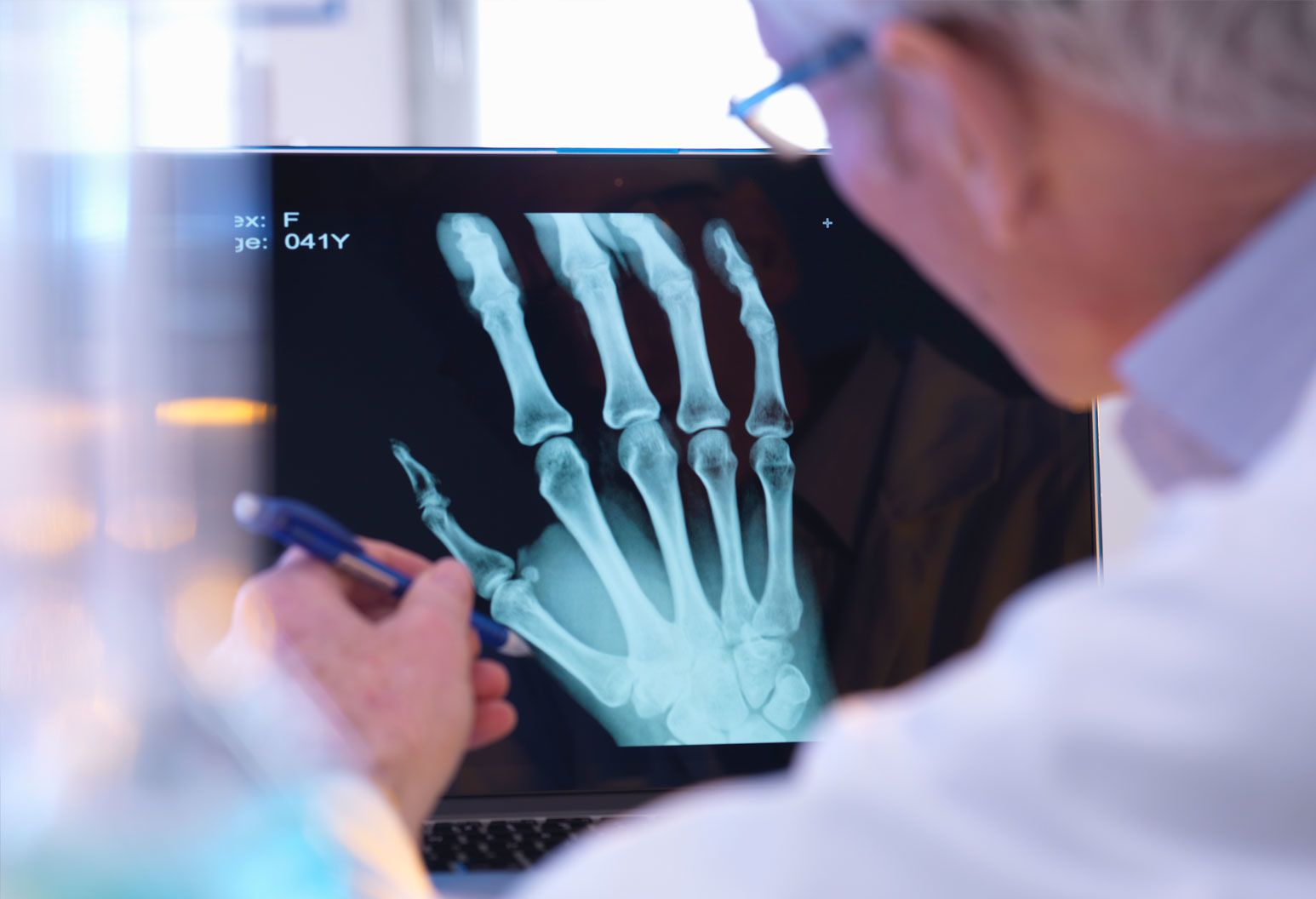 Doctor looking at an x-ray of the hand and wrist