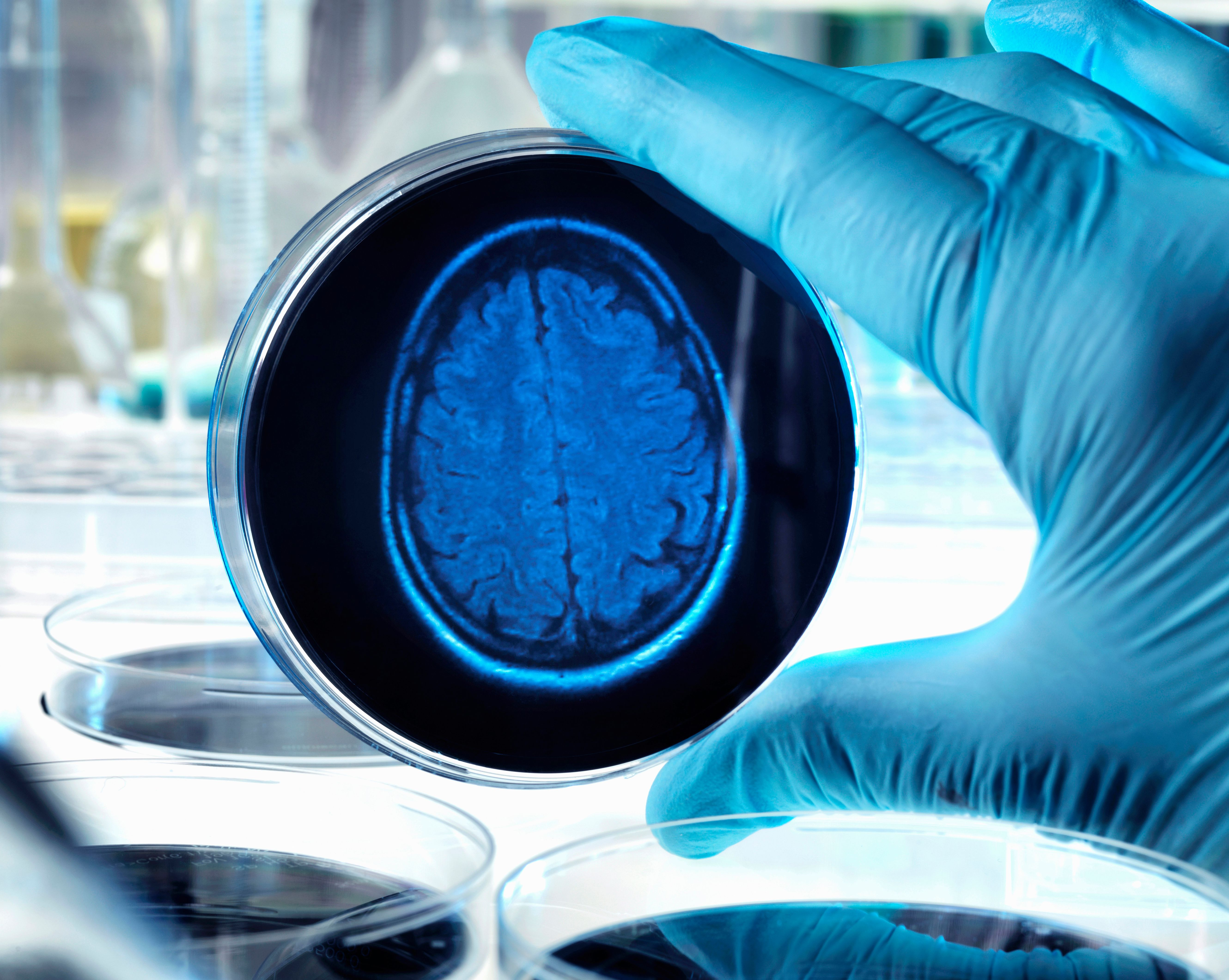 A scientist looks at a brain scan inside a petri dish.