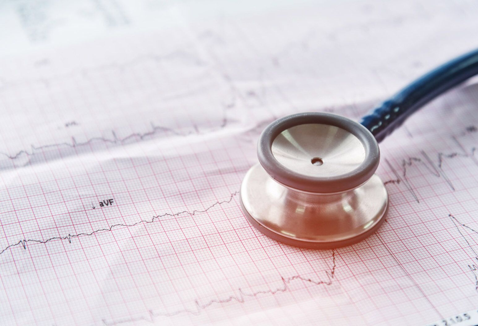 The Electrocardiogram with stethoscope on the EKG paper