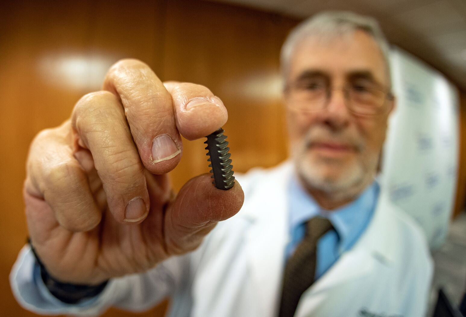 Stanley Asnis, MD, holds his twist-lock interface screw, which promises to limit bone loss and damage to graft ligaments during ACL repair